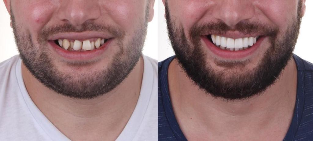 Ein Mann der bei Labor Torsello eine Rekonstruktion, Prothese bekommen hat für schönere weisse gerade Zähne