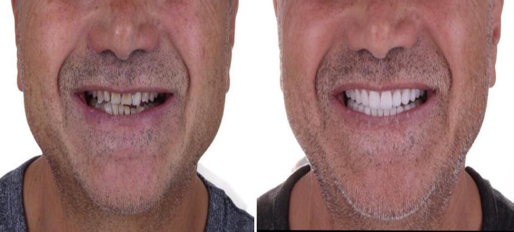 Ein Kunde nachdem er die Dentaltechnik Labor Torsello besucht hat für Prothesen