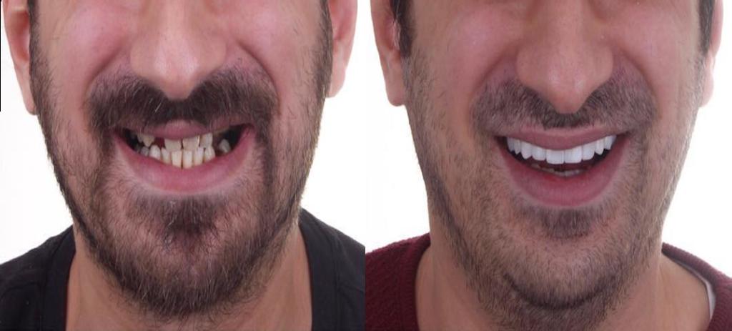 Eine Kunde vor und Nach der Zahnprothese in Labor Torsello