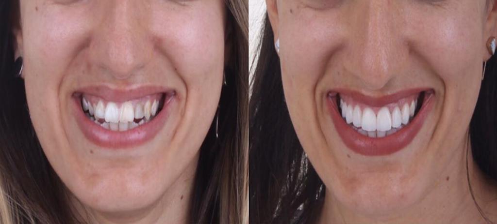 Eine Frau vor und Nach der Zahnprothese in Labor Torsello