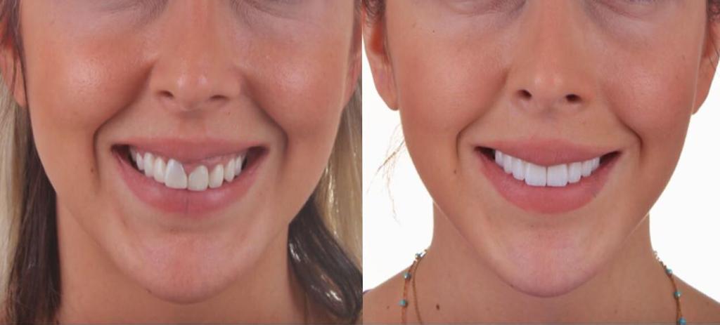 Eine Frau die wegen Labor Torsello Dentaltechnik ein neues schönes Lächeln bekommen hat