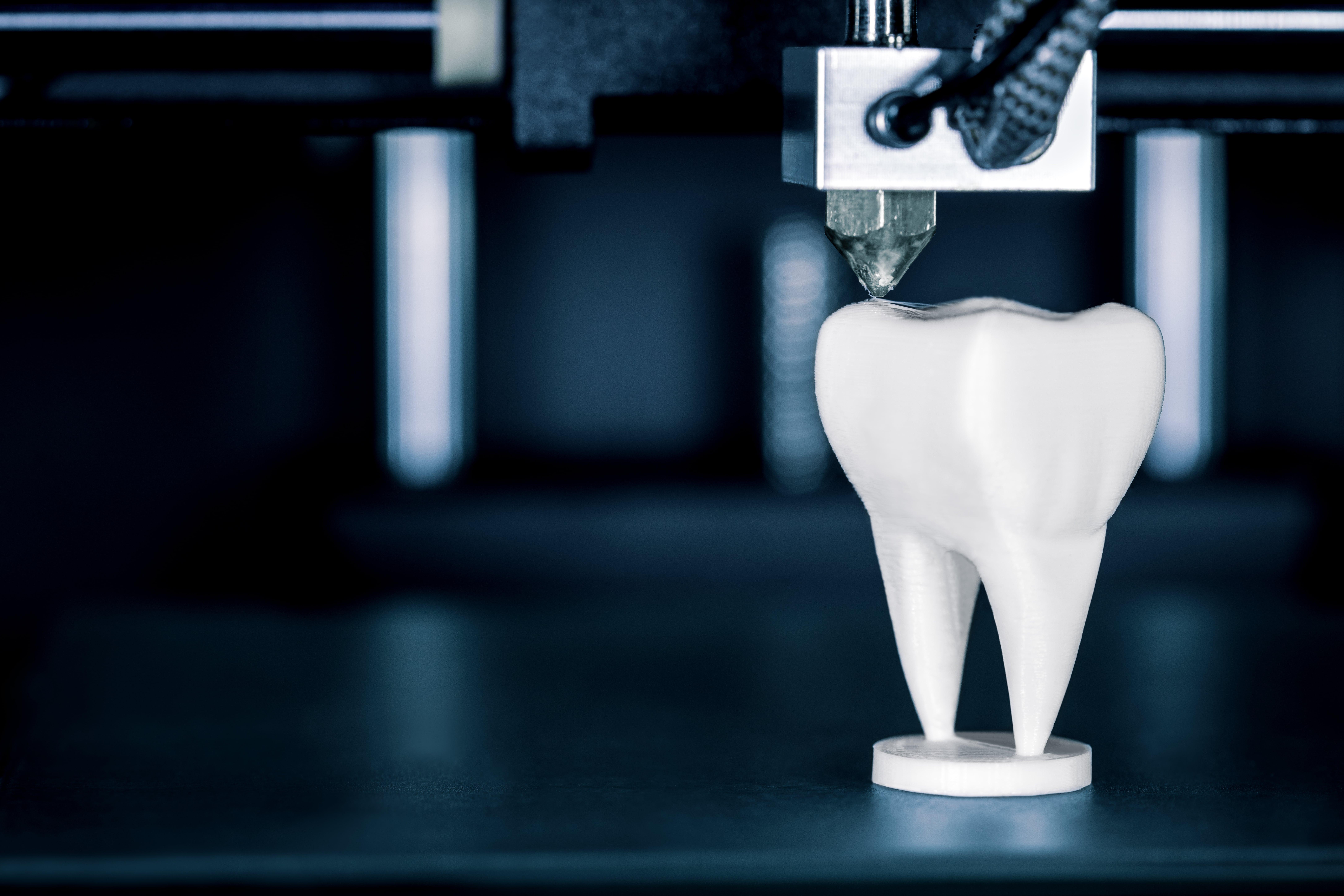 Ein Zahn bei Labor Torsello, weiss gesund und schön.