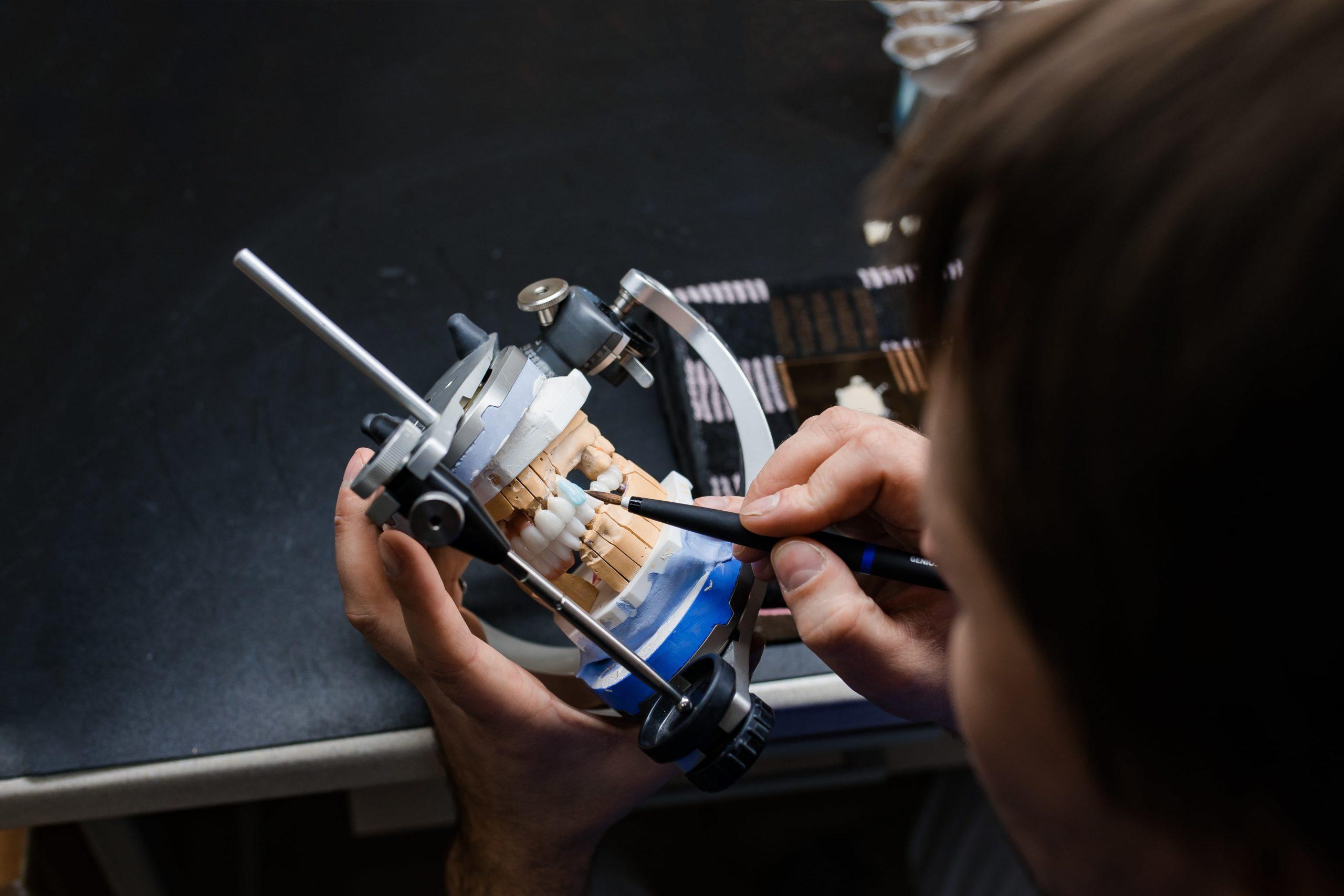 Der Zahntechniker konstruiert ein günstiges und effektives Implantat